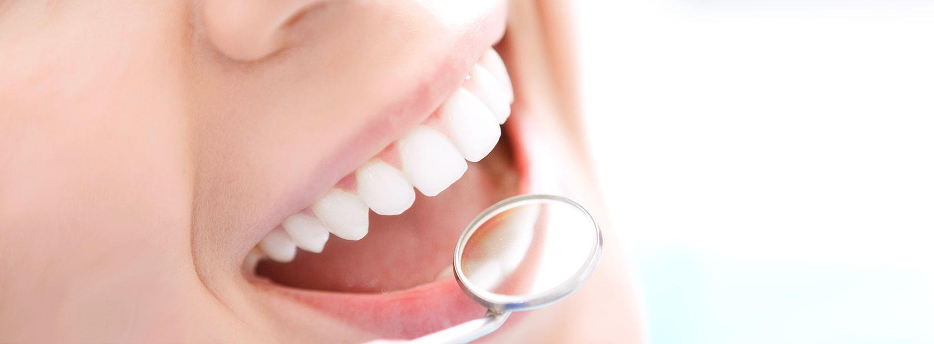 Ästhetischer Zahnersatz Hannover