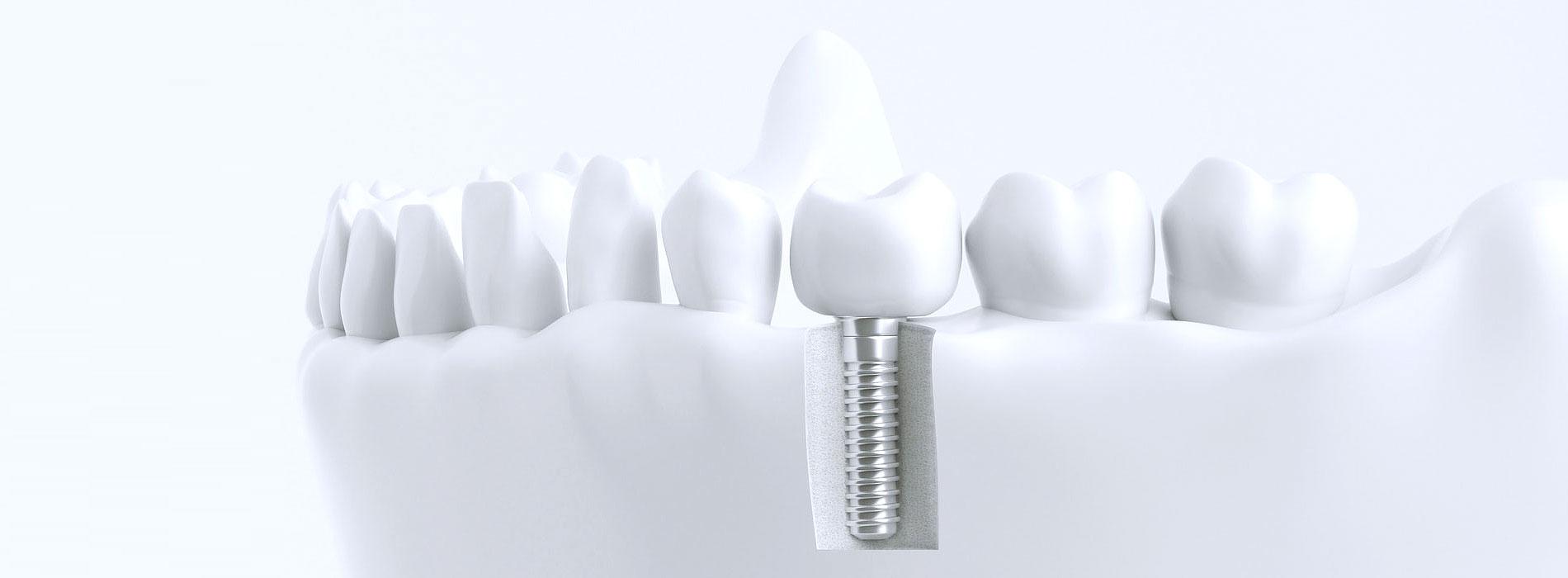 Implantatprothetik Hannover