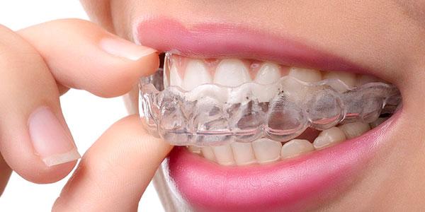 Unsichtbare Zahnstellungskorrekturen